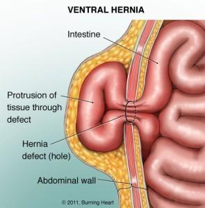 O-que-e- Hernia